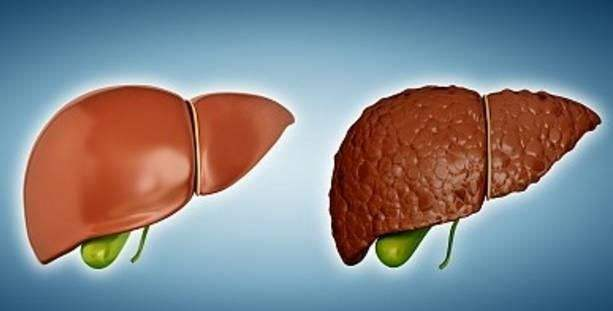 Cell Death Dis:肌成纤维细胞参与诱导肝细胞向胆管上皮细胞转化