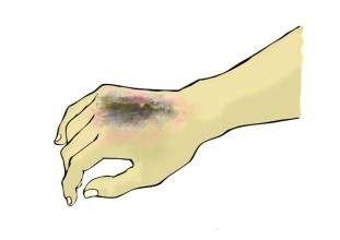 Cell Death Dis:PRIMA-1MET可改善AEC综合征患者的皮肤糜烂