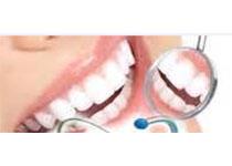 J Periodontal Res:口腔健康相关的生活质量检测与侵袭性和慢性牙周炎之间的联系