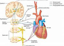 JACC:跨瓣血流和性别对外科主动脉瓣置换术死亡率的影响
