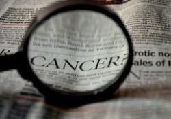 "Med Sci Monit:KIF18A的表达与前列腺癌的<font color=""red"">肿瘤</font><font color=""red"">分期</font>和细胞增殖相关"