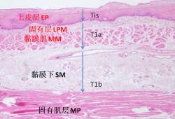 早期食管癌内镜诊断