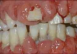 "J Periodontal Res:苯妥英钠改善<font color=""red"">牙龈</font>成纤维细胞衰老的过程与自噬通路有关"