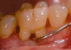 """J Clin Periodontol:口腔磁共振<font color=""""red"""">成像</font>评估上颌磨牙根分叉病变的准确性"""