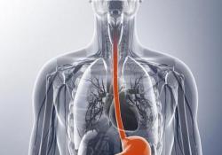 """J Gastroenterology:<font color=""""red"""">食管</font><font color=""""red"""">癌</font>切除后头颈部癌症率升高"""