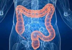 "Dig <font color=""red"">Liver</font> Dis: 抗TNF-α疗法对炎性肠病患者血红蛋白水平的影响"