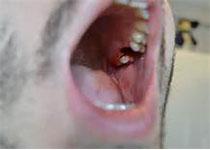 J Periodontal Res:牙周炎患者中VD的联系:一项横向研究