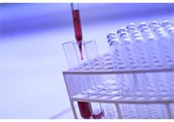 "Clin Chem:血清<font color=""red"">甲</font><font color=""red"">氨</font><font color=""red"">蝶呤</font>定量质谱分析的多点内部校准如何?"