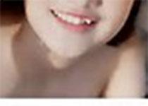 J Periodontal Res:氨氯地平诱导的牙龈增生中白细胞介素-17A表达上调