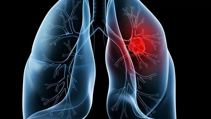 Lancet oncol:派姆单抗治疗未治疗过的脑转移的非小细胞肺癌的疗效和安全性