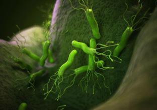 Alimentary Pharmacology Therapeutics:幽门螺杆菌感染可降低食道和近端胃的腺癌发生率