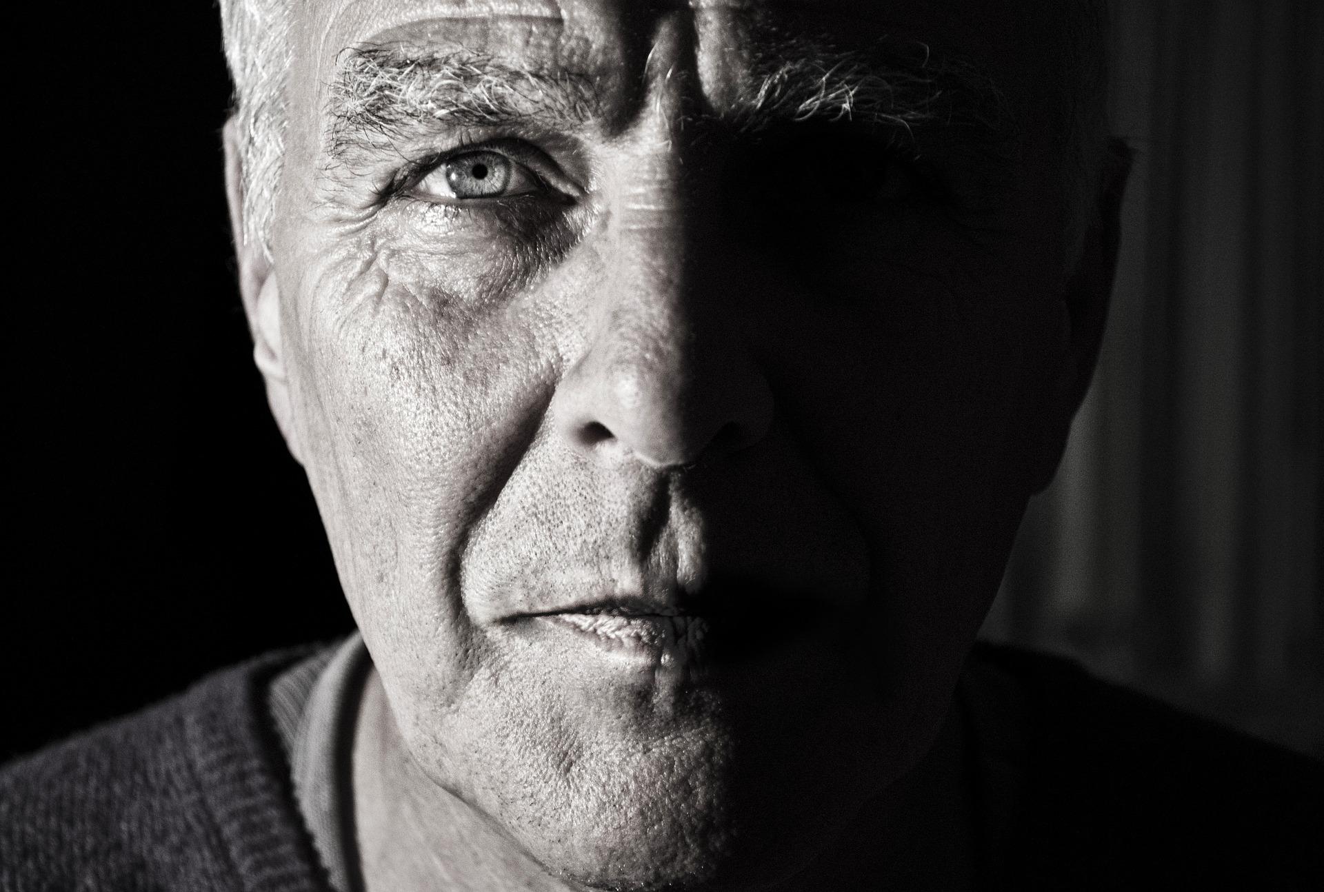STEM CELL REP:烟酰胺可缓解纤维化眼病及视力丧失