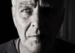 """<font color=""""red"""">STEM</font> CELL REP:烟酰胺可缓解纤维化眼病及视力丧失"""