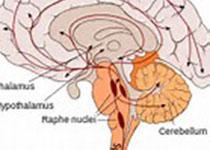 JAMA Neurol:無臨床癥狀患者腦淀粉樣蛋白升高因素研究