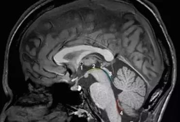 患者突發嘔吐伴神志不清,腦干出血10ml,如何救治?