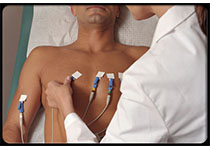 NEJM:积极的介入策略对心脏缺血患者心绞痛的影响