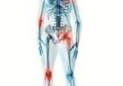 """肌肉骨骼系统慢性<font color=""""red"""">疼痛</font>管理专家共识"""