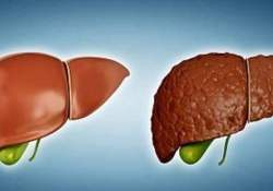 "Cell Death Dis:SREBP1c类泛素<font color=""red"">化</font>是非酒精性脂肪肝的潜在治疗靶标"