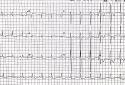 ST-T改变、T波倒置就是心肌缺血冠心病吗?