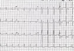 "ST-T改变、T波倒置就是心肌缺血<font color=""red"">冠心病</font>吗?"