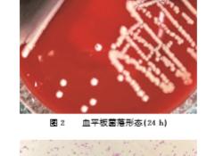 """长<font color=""""red"""">奈</font>瑟菌致感染性心内膜炎1例"""