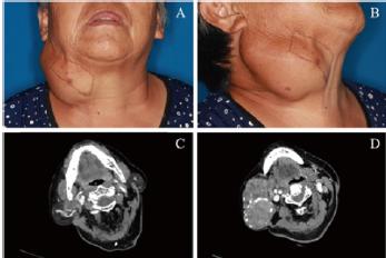 腮腺下极巨大多形性腺瘤1例