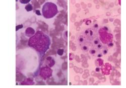 妊娠期合并噬血细胞综合征1例