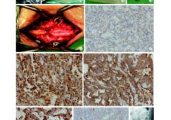 椎管内马尾区副神经节瘤1例