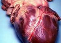 Circulation:微管强化了衰竭心肌细胞的舒张功能障碍