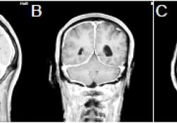 """经治疗后头痛复发的肥厚性硬<font color=""""red"""">脑膜</font>炎1例"""