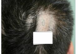 男性脂肿性头皮1例