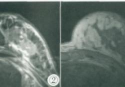 """肺腺癌乳腺转移超声及<font color=""""red"""">MRI</font>表现1例"""