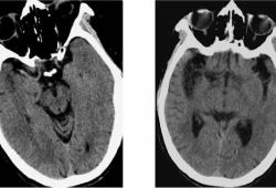 掌握5个征象,CT也能诊断超早期脑梗死