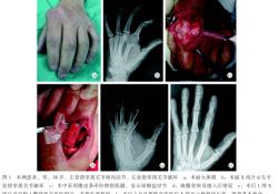 """累及掌指关节大段骨关节破坏的<font color=""""red"""">痛风</font>结节1例"""