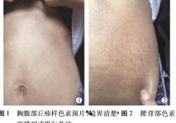 真皮中层弹性组织溶解症 1 例