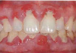 "J Periodontol:牙周病中炎症小体调节转录的<font color=""red"">差异</font>性表达"