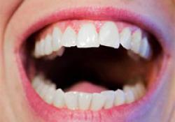 "J Clin Periodontol:<font color=""red"">镰状</font><font color=""red"">细胞</font><font color=""red"">贫血</font>患者的铁过载及牙周状况"