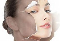 Galderma的新型透明质酸填充剂Rystylane Kysse,获得FDA批准用于丰唇
