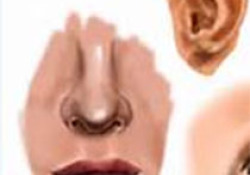 "Otolaryngol Head Neck Surg:年龄相关<font color=""red"">的</font>中央听觉处理<font color=""red"">器</font>障碍、MCI<font color=""red"">和</font>痴呆研究"