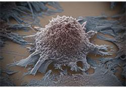 """Blood:Myc对采用EPOCH±Vorinostat治疗的<font color=""""red"""">HIV</font>-NHLs的预后的影响"""
