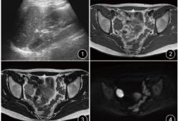 性腺母细胞瘤伴精原细胞瘤成分一例