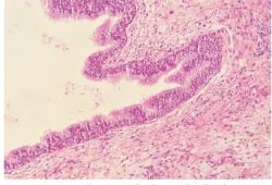 頸上部支氣管源性囊腫1例