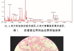 """质<font color=""""red"""">谱</font>快速鉴定两例AIDS合并真菌<font color=""""red"""">性</font>血流感染病例分析"""