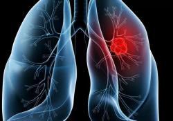 "Lancet oncol:胸部<font color=""red"">恶性</font><font color=""red"">肿瘤</font>感染COVID-19后的死亡率"