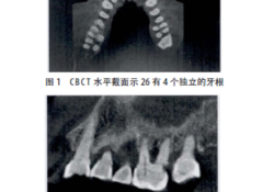 "CBCT<font color=""red"">辅助</font>诊断上颌第一磨牙罕见双腭根1例"