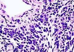 转移性小细胞肺癌(SCLC)新药Zepzelca(lurbinectin)已获批准