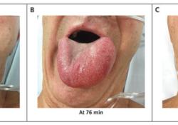 NEJM:t-PA输注后血管性水肿-病例报道