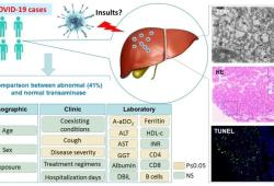 J Hepatology: 肝脏的新冠病毒感染直接导致肝损害