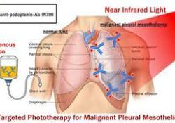 """近红外<font color=""""red"""">光</font>免疫疗法(NIR-PIT):治疗恶性胸膜间皮瘤的曙光"""