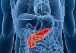 "J Gastroenterology: 早期非壶腹十二指肠腺癌<font color=""red"">淋巴</font><font color=""red"">结</font>转移的临床病理特征及危险因素"